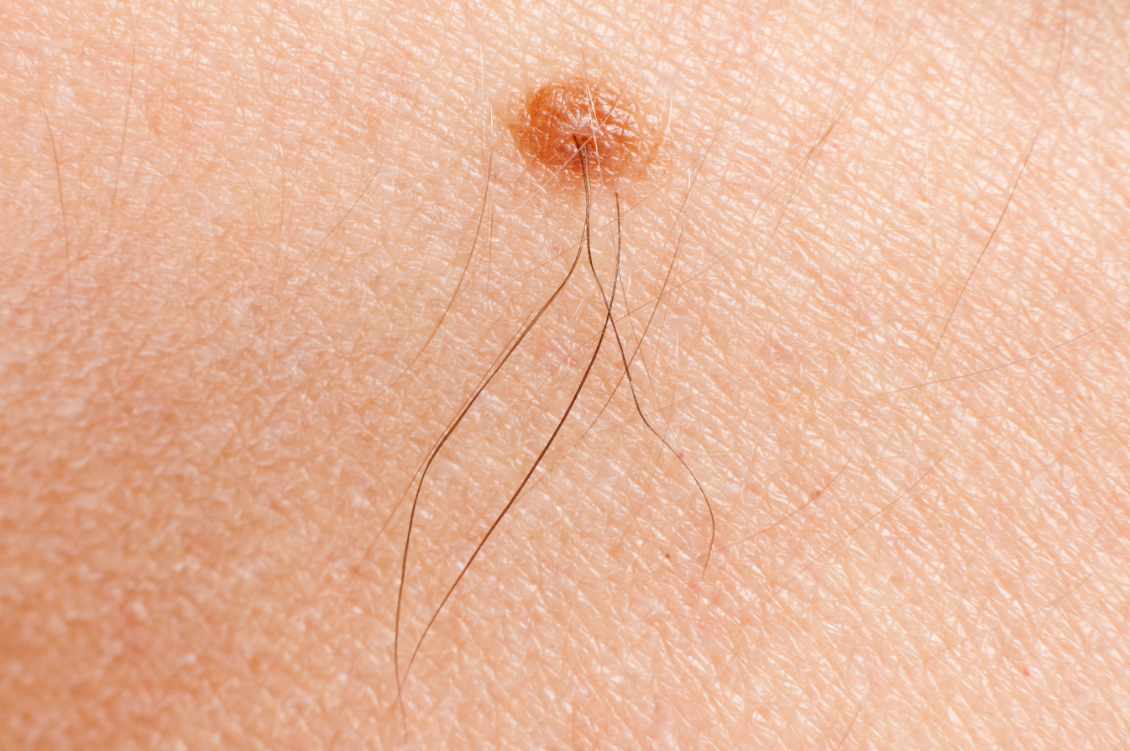 Can Electrolysis Be Performed On Moles? - L&E