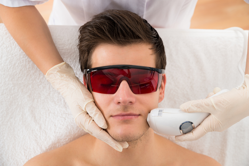 Man-facial-laser-hair-removal